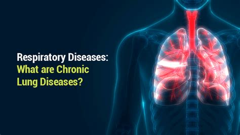 blogger lung lung institute respiratory diseases what are chronic