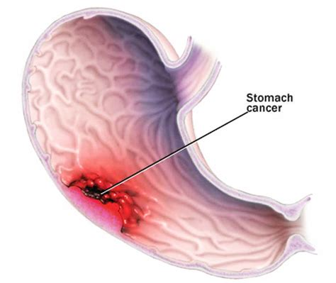 stomach tumor stomach cancer causes symptoms treatment stomach cancer