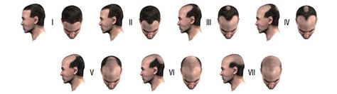 male pattern hair loss current understanding understanding men s hair loss on the norwood scale hair club