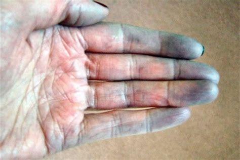 normal skin color temperature and condition should be what is raynaud s disease health nails magazine