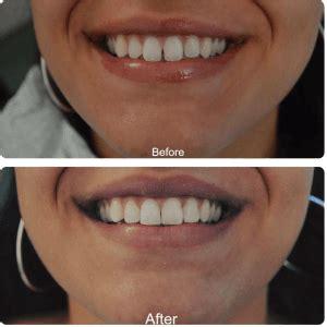 composite bonding caerleon newport isca dental