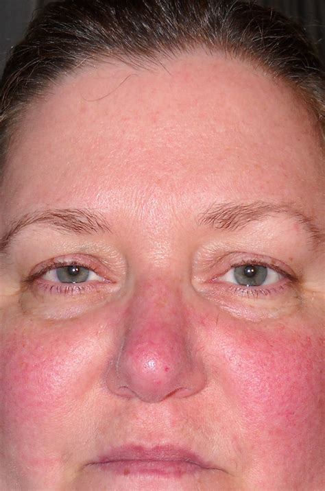lupus rash on www pixshark images galleries