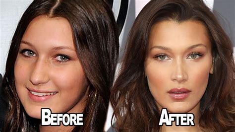 has bella hadid undergone plastic surgery bella hadid opens up about having plastic surgery youtube