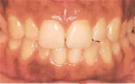 imagenes de manchas oscuras en la lengua arteria coronaria normal