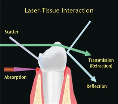 the diode laser in dental hygiene dimensions of dental hygiene
