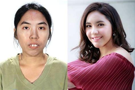 film thailand wanita jelek jadi cantik 10 before after cewek thailand usai operasi plastik
