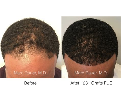 hair transplant in amerca fue hair transplant in african american patient hair