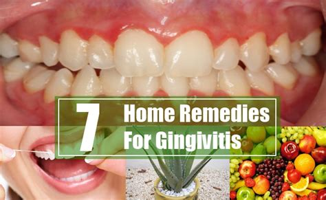 7 home remedies for gingivitis treatments cure