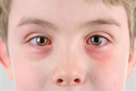 eye goop toddler eye discharge top 4 causes safe symptoms