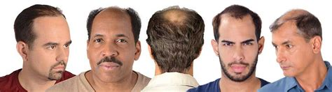 a man balding at the crownwhat is the best hair style for male pattern baldness causes treatments hair club