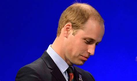 what percentage of men lose hair there s hope for balding prince harry and william and the