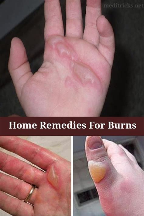 burn injury home remedies and home remedies for burns on