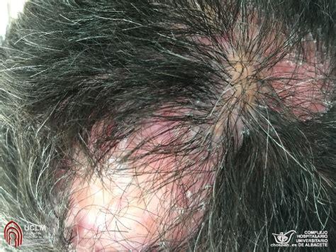 acne en el cuero cabelludo p 250 stulas y p 233 rdida de pelo