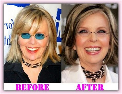 Diane Is Terrified Of Plastic Surgery by Bladder Augmentation Surgery Juegos Best Vaser