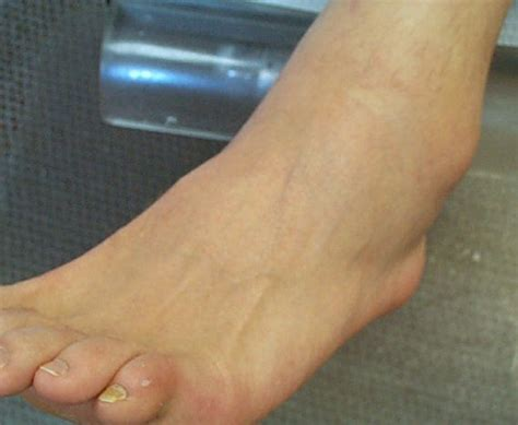 sprained ankle sprained ankle pictures