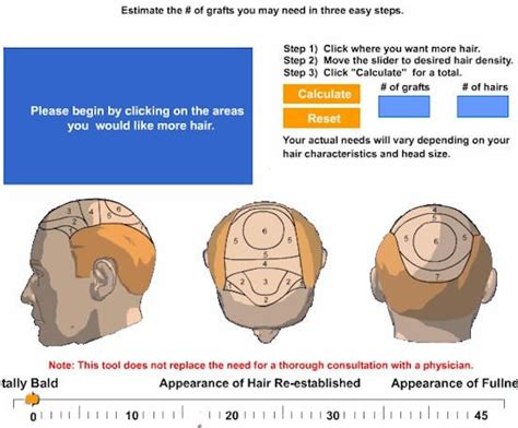 hair transplant calculation 120 best images about aravali hair transplant clinic on