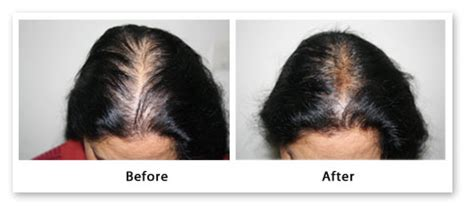 female pattern hair loss medscape hair loss in women female pattern baldness