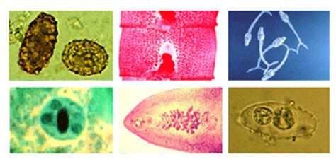 Mikrobiologi Parasitologi ringkasan praktikum parasitologi