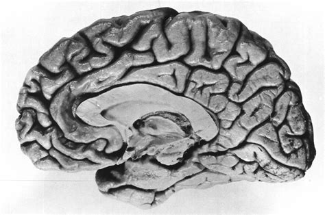 human brain cross section saved from