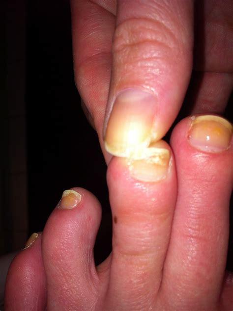 broken nail pending nail consult how to fix a broken nail