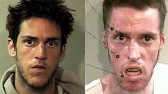 drogenopfer vorher nachher meth wie die droge menschen zu zombies macht
