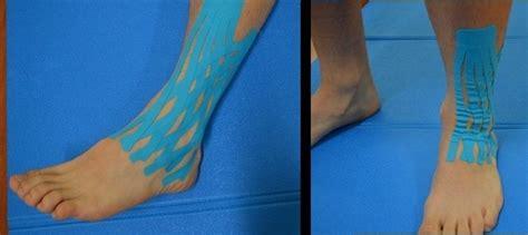 gonfiore malleolo interno distorsione alla caviglia rimedi piede tempi di