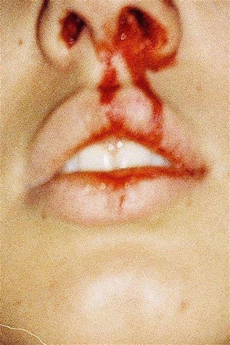 bloody nose bloody nose blood