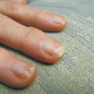 damaged nail bed avoid nail damage with proper gel polish removal