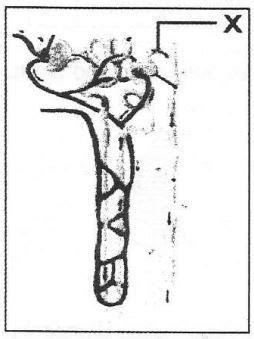 kunci jawaban perhatikan gambar nefron ginjal berikut