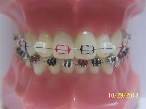 the gallery for gt braces colors combinations cool braces colors 28 images the gallery for gt pretty