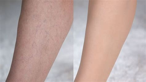 tattoo cover up varicose veins pin by bev johnson on who knew pinterest