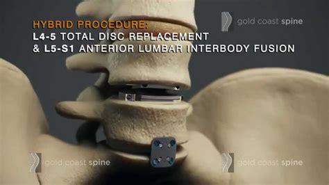 Disc Tdr Nmax By Bmr lumbar hybrid lumbar spine surgery