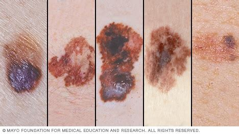 Show Me Pictures Of Melanoma slide show melanoma pictures to help identify skin cancer