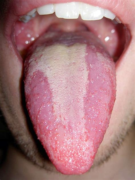 white pattern on tongue is hot sauce good for you side effects you d never expect
