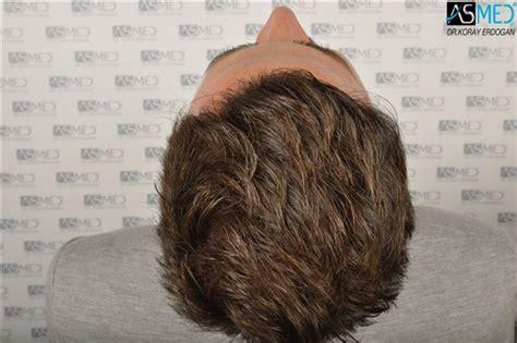 hair plugs v hair transplant dr koray erdogan asmed clinic 2806 grafts manual fue