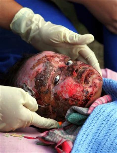 imagenes de niños quemados con cohetes operaciones por laparoscopia quemaduras ni 209 os