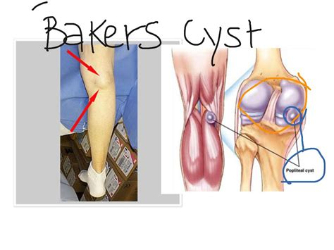 Planters Cyst by Bakers Cyst Science Showme