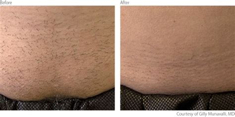 diode laser hair removal before and after hair removal lasers hair removal system lumenis
