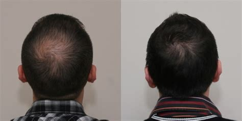 hair transplant stories and patient testimonials hair transplant testimonials hair transplant before and