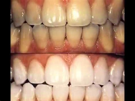 crest 3d whitestrips with light review crest 3d white whitestrips before after results