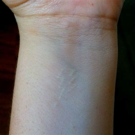 lightning tattoo scar 51 best ink images on lightening bolt