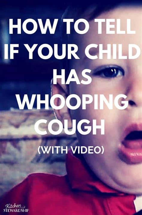 what does a cough sound like signs and symptoms of whooping cough in