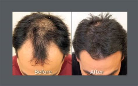 neograft in turkey neograft hair transplantation before and after neograft