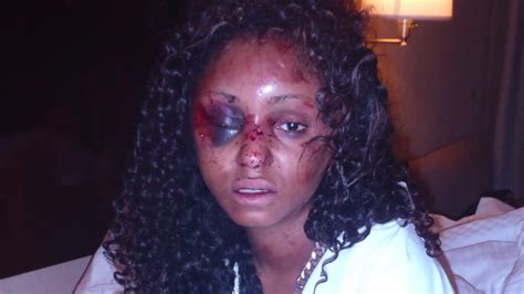 black hairstyles on facebook woman shares details of l a assault during date with man