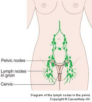 Lymph Detox Pelvis by Pelvic Lymph Nodes Search Reproductive
