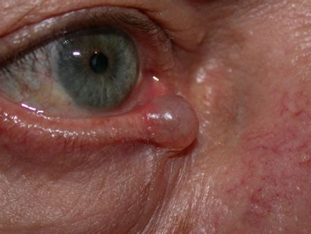 cyst on s eyelid prednisone as related to benign ear cyst or tumor pictures