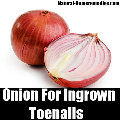 7 effective remedies for ingrown toenails how to treat