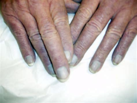 cyanotic nail beds cyanosis