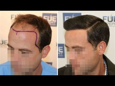 dr kieley hair restoration fue hair transplant 3958 grafts in nw class lv a dr