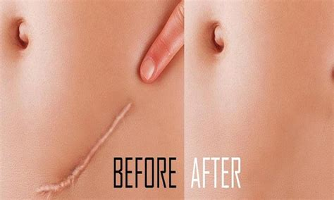 hide hair scar marks try this home treatment will remove your scars and stretch